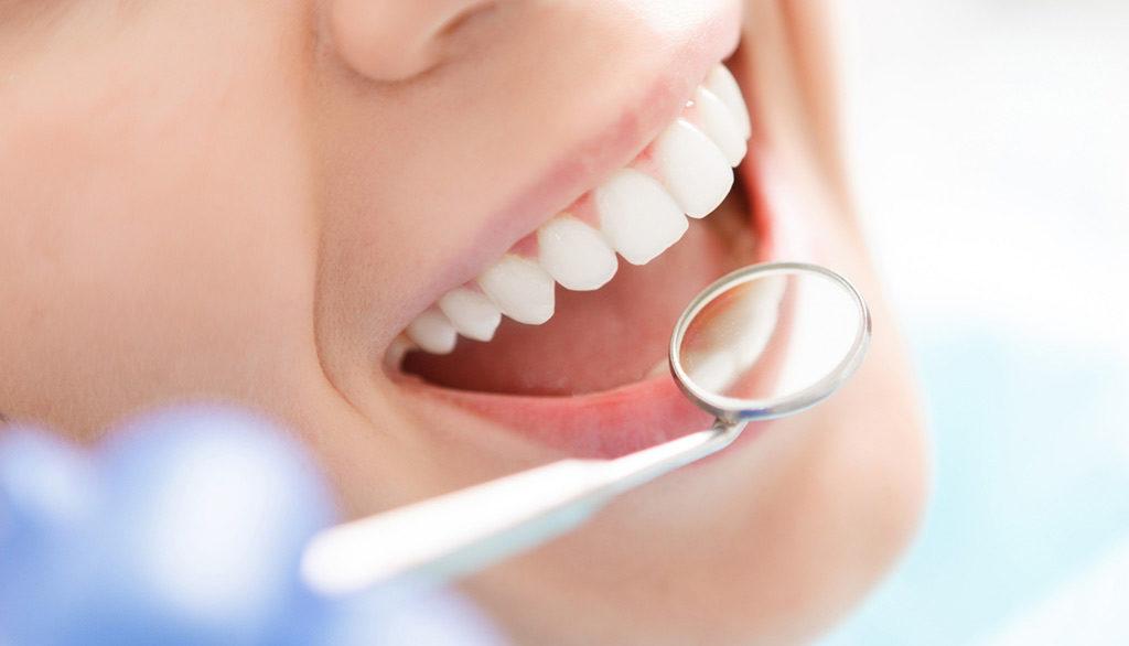 Cure conservative denti - Studio Dentistico Bianchini Rimini