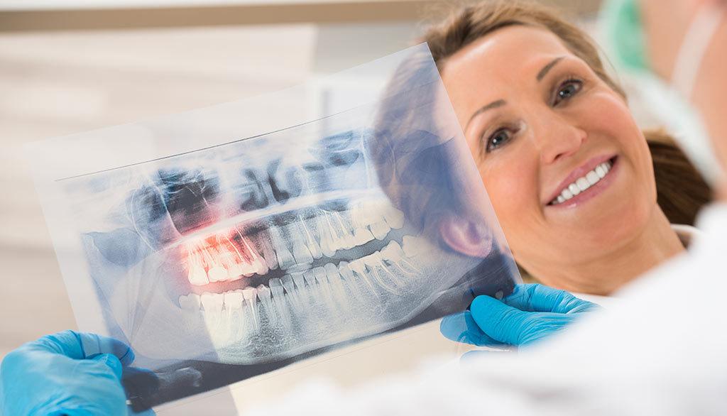 Radiografia denti a Rimini, esami diagnostici Rx endorali e Opt panoramiche