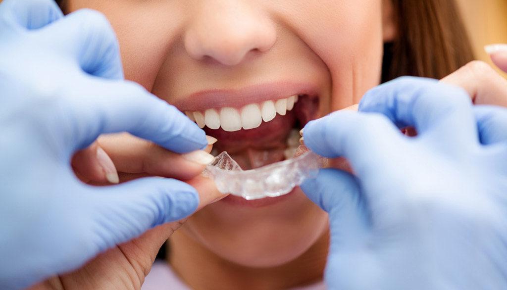 Ricostruzione denti consumati, riabilitazioni dentarie Studio Dentistico Bianchini Rimini